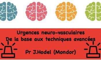 PROCHAINE SOIREE FORMATION NEURORADIOLOGIE
